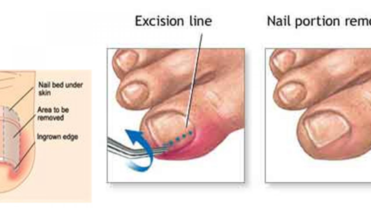 Ingrown Toenails: Causes, Symptoms, and Treatment - Latest News and ...